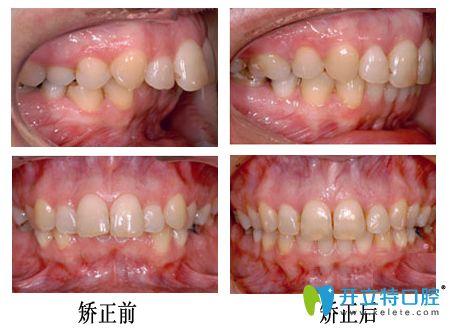 重庆牙博士口腔龅牙矫正案例