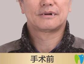 老爸在北京维乐口腔做种植牙前的照片