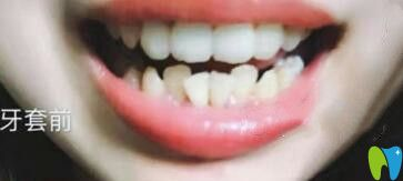 深圳诺德齿科牙齿矫正价格真不贵,我做的隐形矫正15800元起