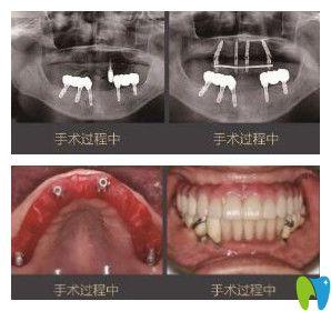 老爸在北京维乐口腔做种植牙过程中
