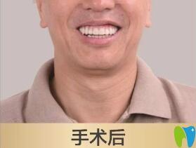 老爸在北京维乐口腔做种植牙后
