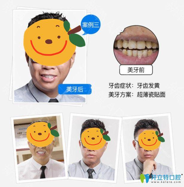 广州瓷贴面哪家做的好?在曙光口腔做了牙贴面顾客用效果来说话