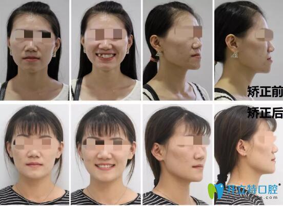 王小姐在昆明雅度口腔做的牙齿矫正脸部图