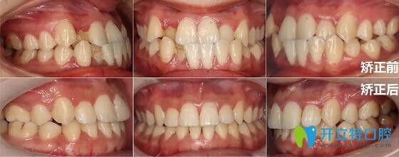 昆明雅度口腔做的牙齿矫正效果前后对比图
