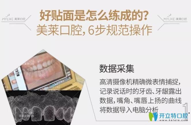 深圳美莱口腔隐形臻薄牙贴面6不规范操作