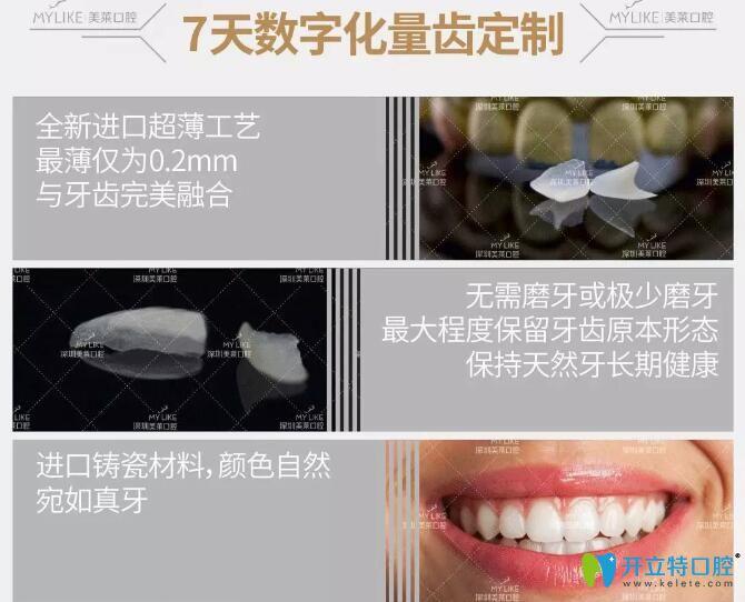 深圳美莱口腔隐形臻薄牙贴面的优势