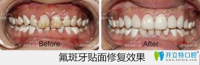 美莱口腔氟斑牙贴面修复案例
