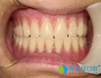 在鼎植口腔做all-on-4全口种植牙术后即刻