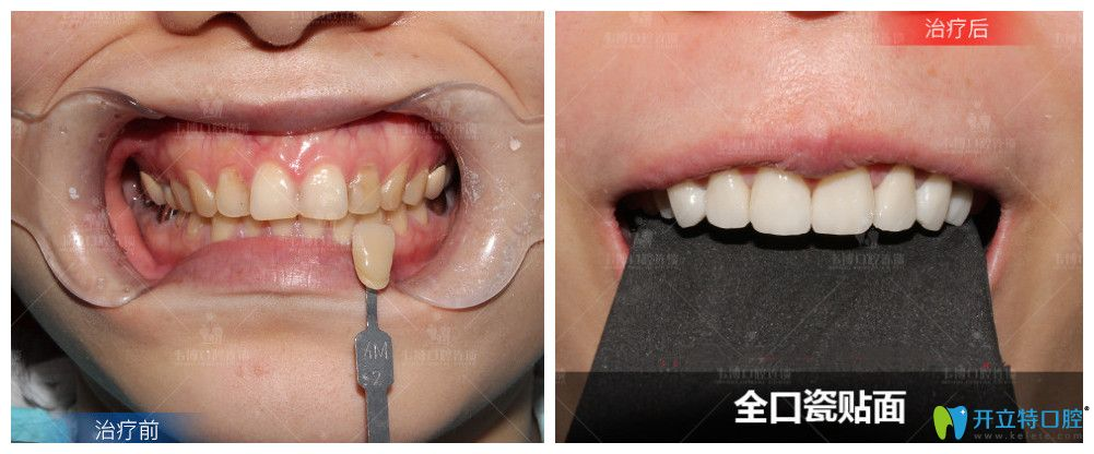 这里有深圳福田下沙韦博口腔瓷贴面美齿效果对比图及价格