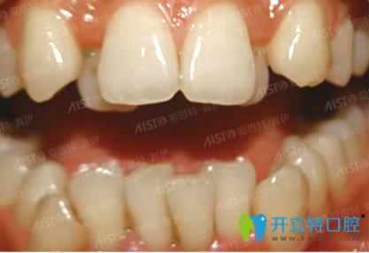 我的两颗门牙突出,在重庆爱思特口腔做陶瓷托槽矫正改善了