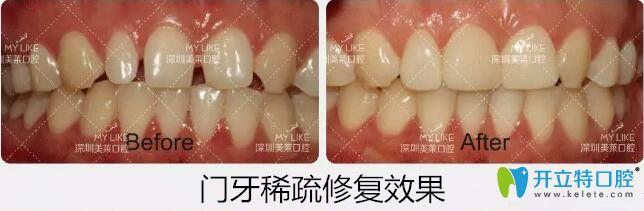 深圳美莱口腔牙齿稀疏贴面案例