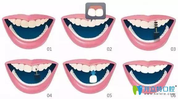 备受追捧的牙齿贴面材料选全瓷、硬质和树脂贴面哪个好
