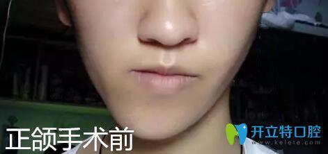 偏颌矫正成功,来分享在广州雅度口腔做正颌手术脸型变化图