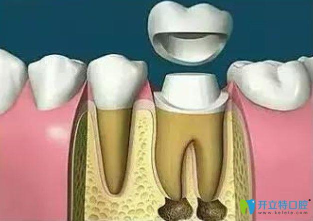 带上牙冠保护坏牙完成修复