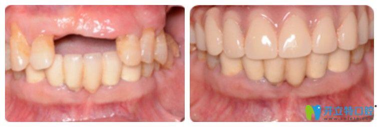 看65岁老干部在北京优贝口腔做的半口牙种植效果如何