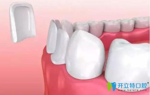 牙齿贴面有后遗症?千万别做树脂牙齿贴面的真相