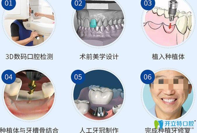 正夫口腔种植牙过程