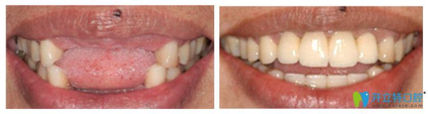 正夫口腔半口牙种植案例