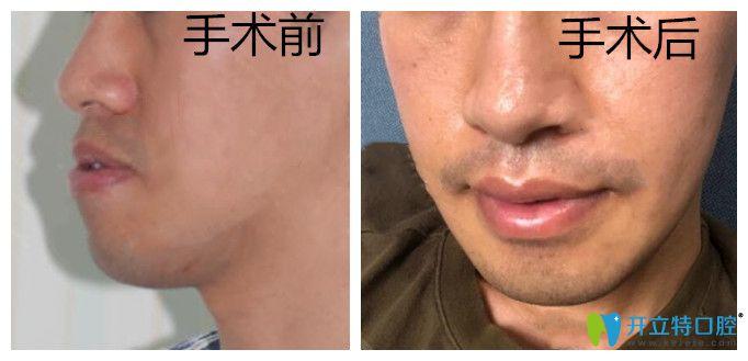 上海中博口腔地包天正颌手术案例