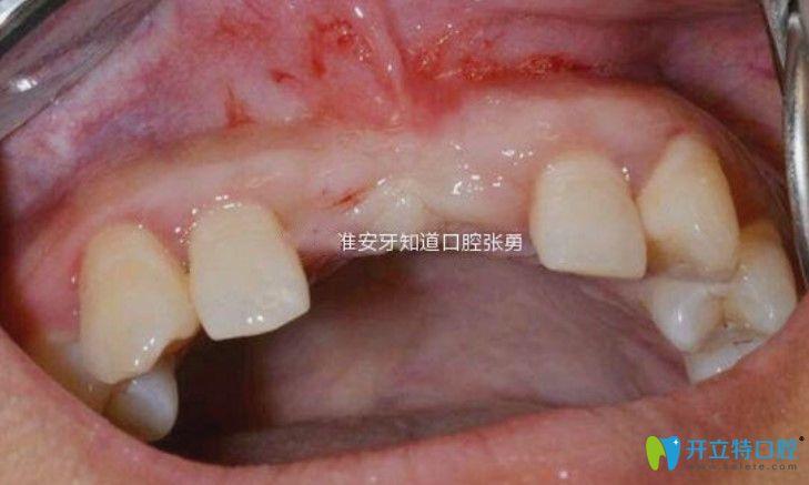 门牙因为意外折断怎么办