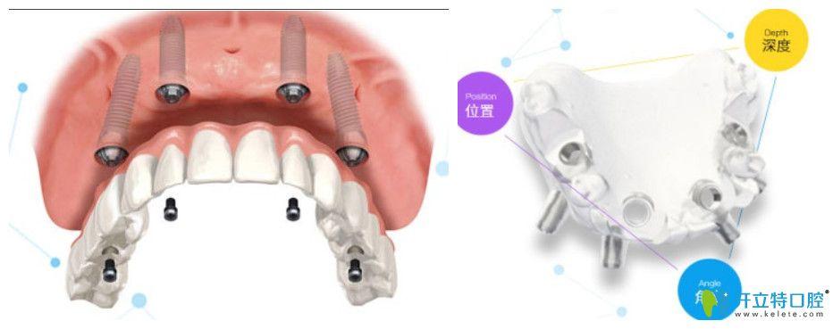美奥口腔3d数字化种植牙