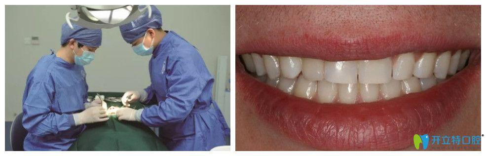 关院长为周女士种牙过程及完成种植后图示