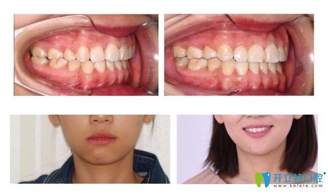 王女士在重庆维乐口腔做的牙齿矫正前后对比图
