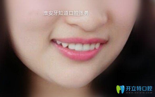 牙知道张勇做即刻种植牙修复缺失门牙案例
