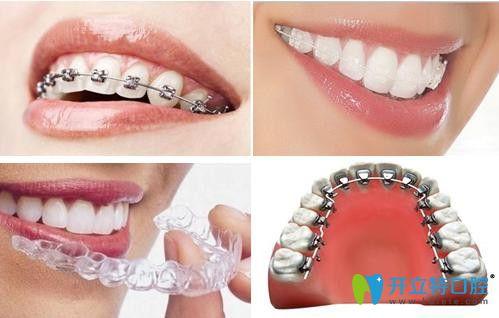 牙齿矫正的几种方法图