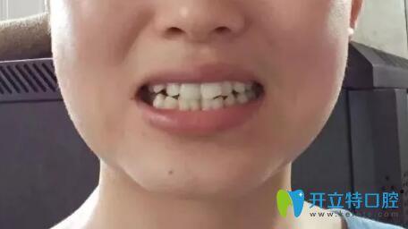 靖江口腔哪家好?我在艾齿嘉口腔做的金属牙齿矫正效果特棒
