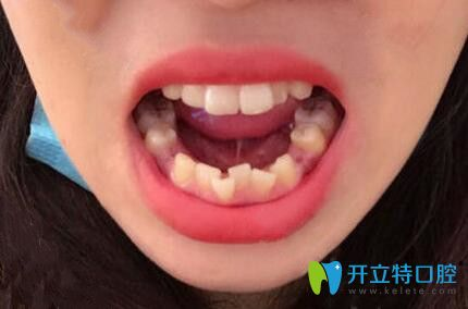 石家庄中诺口腔不止种植牙靠谱,我做的牙齿矫正效果也很赞