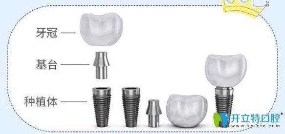 缺牙为什么要选择进口种植体
