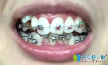 我刚戴金属牙套矫正时的牙齿照