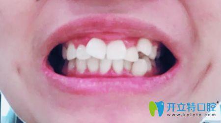 在深圳福田区佳美口腔做完金属自锁牙齿矫正后的效果分享