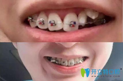 谁说扭转牙很难矫正,我在深圳美佳德口腔矫正两年就改善了