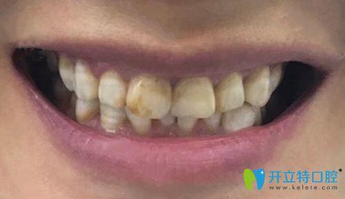 听说做了瓷贴面感觉牙好假,我在宁波恒美口腔做的很自然呀