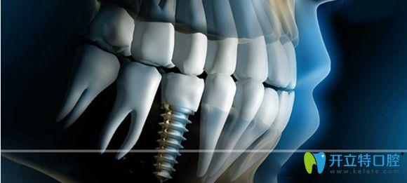 今日分享深圳佳美口腔即刻种植牙和半口种植牙近期案例