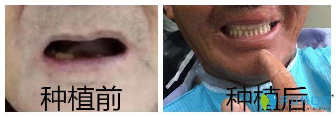 通过ALL-ON-4半口全口种植牙效果来了解靖江艾齿嘉口腔怎么样