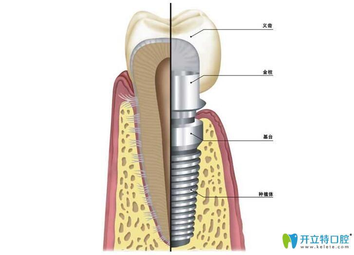 恒美口腔对于种植体、基台和牙冠的要求很高