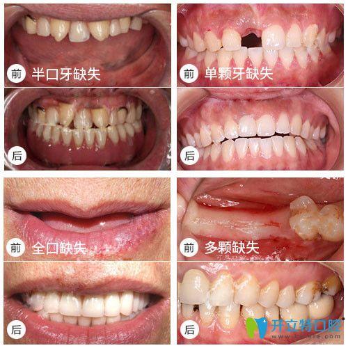 全口,半口种植牙真实案例及前后对比效果