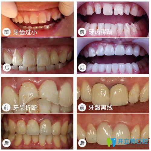 铭德口腔牙齿修复前后对比效果