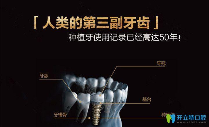 种植牙是人类的第三幅牙齿
