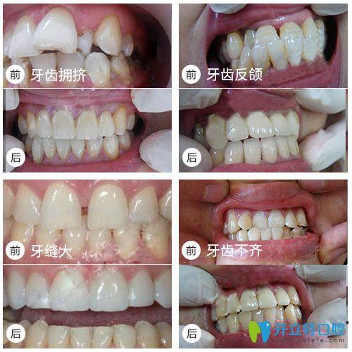 牙齿拥挤/牙齿不齐矫正等前后对比照