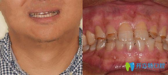 在襄阳德恩口腔做了牙齿贴面,女儿说我的全瓷贴面效果不错