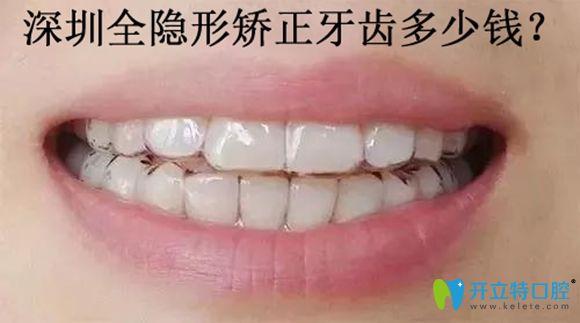 深圳佳美口腔隐形牙套矫正价格仅29999元起
