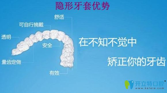 隐形牙套的优点介绍图