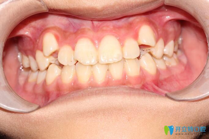 虎牙矫正,我在清远德艺口腔戴金属自锁牙套1年多就拉下来啦