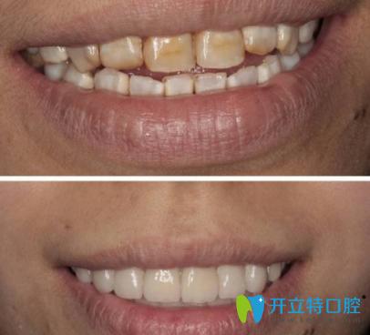 氟斑牙美白前后对比照