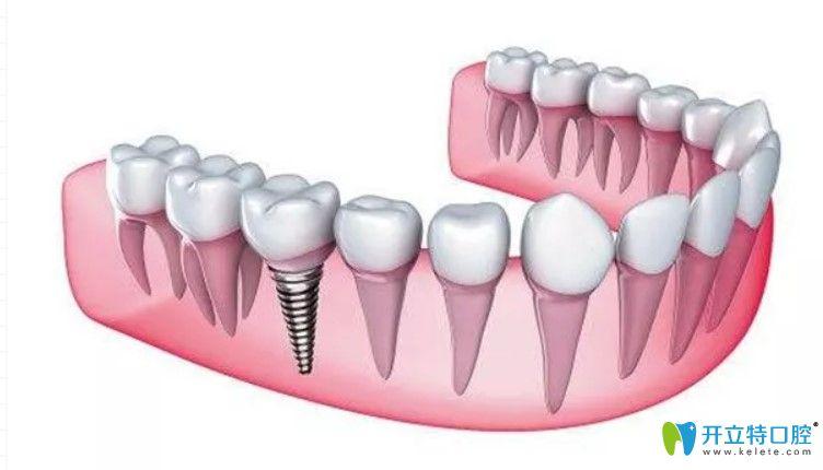 即刻种植牙需要多长时间