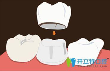 牙齿烤瓷冠图片